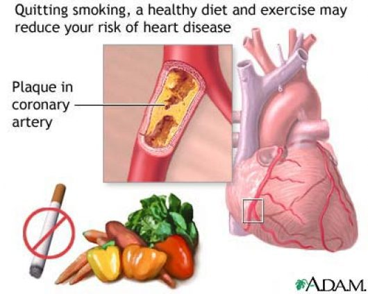 Preventing Cardiovascular Diseases