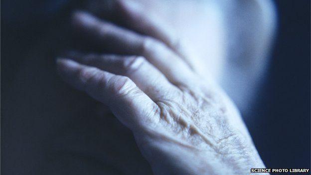 early Parkinson