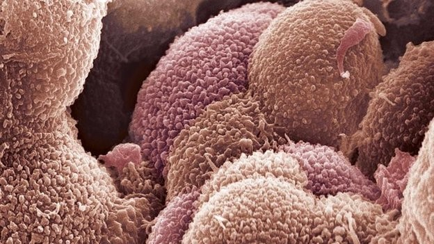 Ovarian cancer can be difficult to identify accurately, the researchers said