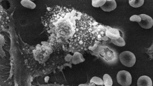 A cancer cell (Image from Wikipedia.org)
