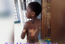 Burnt girl, Child bathed with hot water over witchcraft