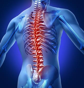 Illustration of a spinal cord injury. [02JUN2014 BROADSHEET HEALTH LEAD]