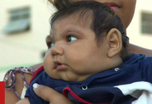 Experts say Zika could be behind many other damaging neurological conditions