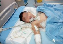 A 10-year-old boy is recovering in hospital after he was stabbed several times by a man on a bus in Yiyang, central Hunan Province.[Photo/weibo]
