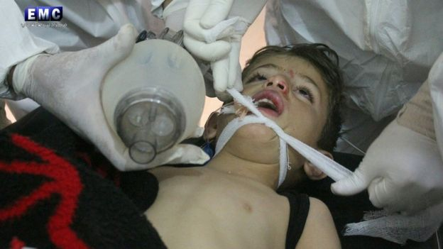 A handout photo made available by the Syrian opposition Idlib Media Centre appears to show a child receiving treatment after an alleged chemical attack