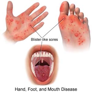 foot and mouth disease