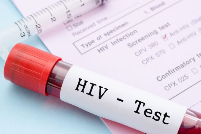 Ghana finds cure for HIV and AIDS | News Ghana